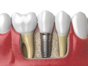 Dental Implant placed alongside original teeth.
